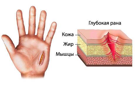 Глубокий порез пальца ножом: что делать, как лечить и возможные осложнения